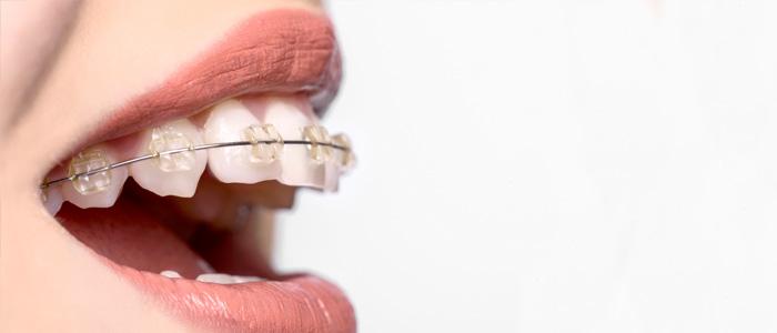 متخصص سیم کشی دندان در گرگان