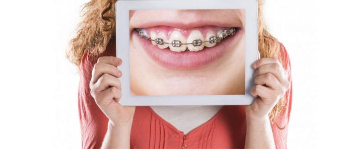 بهترین دکتر دندان پزشک ارتودنسی در گرگان