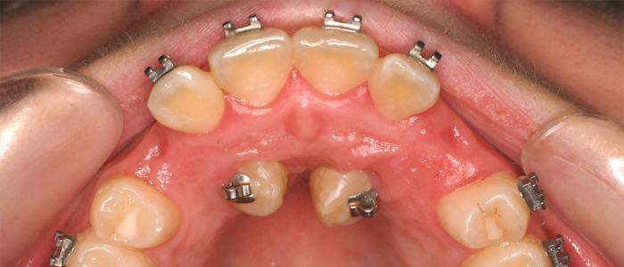 میزان سلامت دندان ها