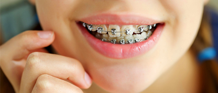 دندان پزشک متخصص ارتودنسی در گرگان