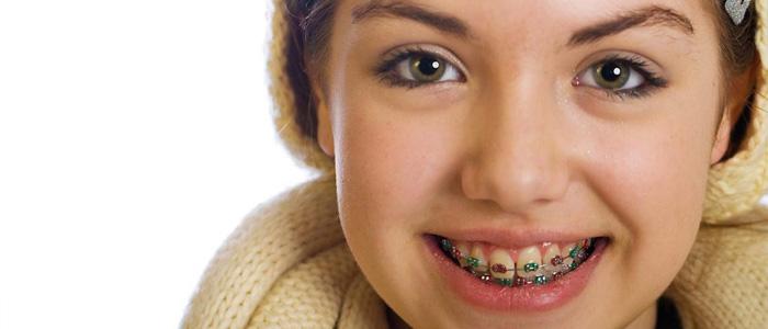 فواید ارتودنسی دندان در کودکی
