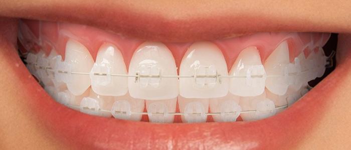 مشکلات دندان ها