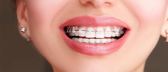 ارتودنسی تک دندان در گرگان